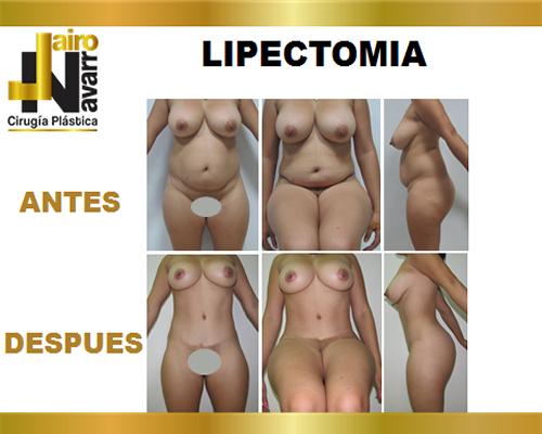lipectomia2