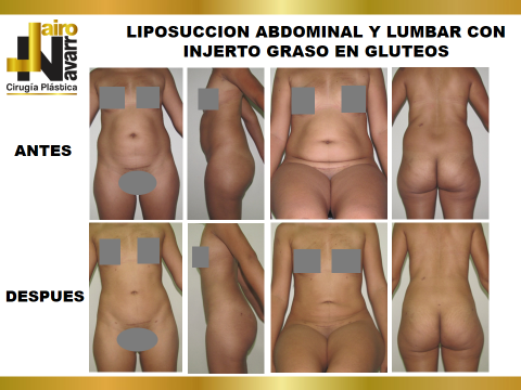 lipo abdomen y lumbar