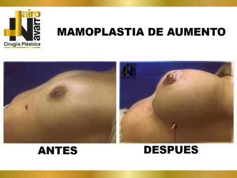 mamaplastia aumento