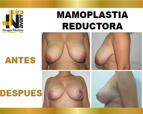 mamoplastiareductora2