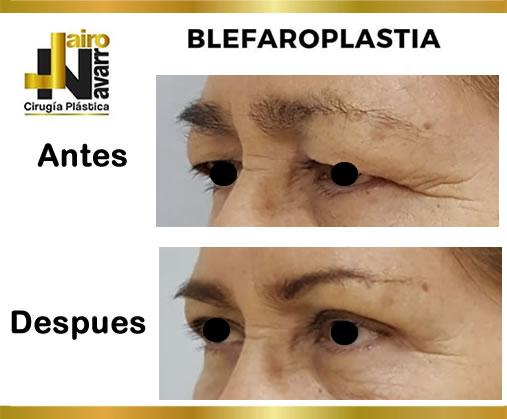 BLEFAROPLASTIA2