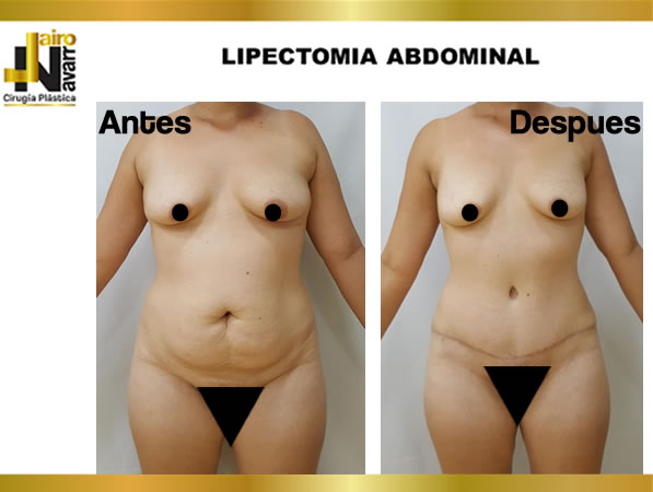 Lipectomia abdominal2