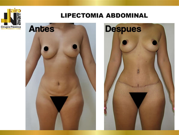 Lipectomia abdominal3