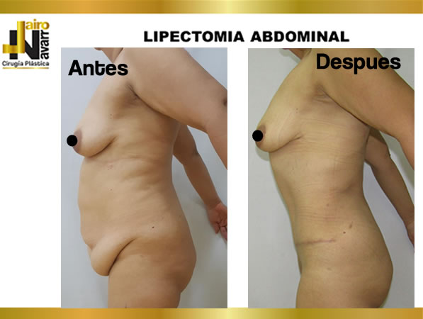 Lipectomia abdominal4