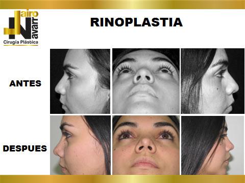 RINOPLASTIA2