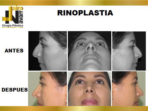 RINOPLASTIA3
