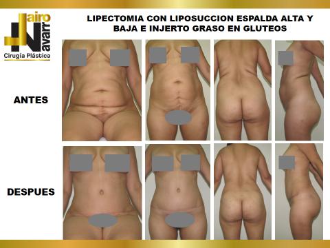 lipectomia y lipo espalda