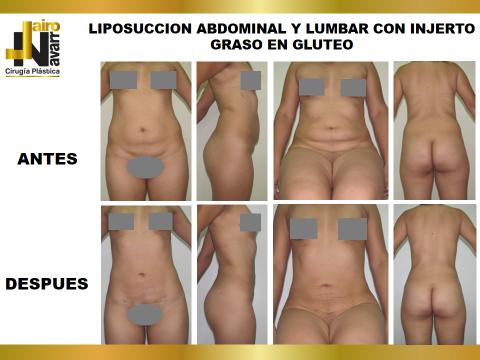 lipo abdomen y lumbar 2