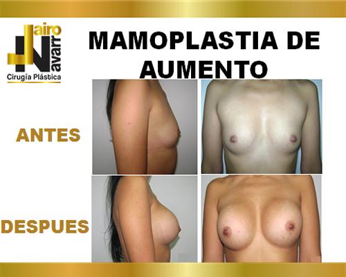 mamoplastiaaumento