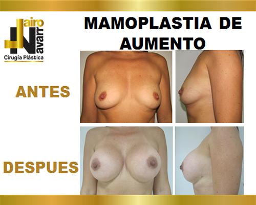mamoplastiaaumento2