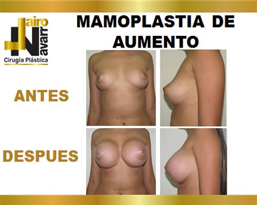 mamoplastiaaumento3
