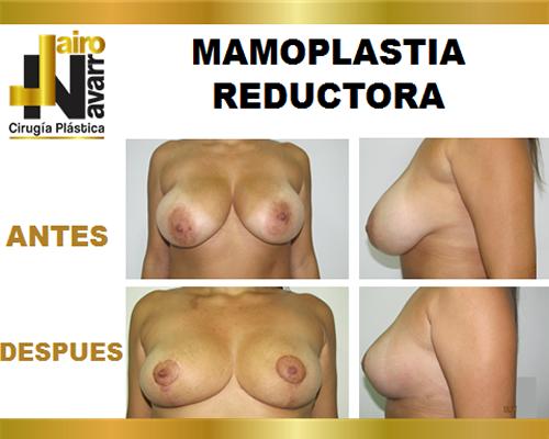 mamoplastiareductora